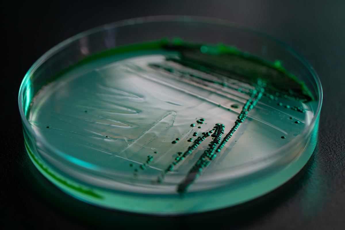 Algae growing in a petri dish. Much of the work in the lab aims to develop algae strains that efficiently convert more carbon and other nutrients into energy-rich fat.